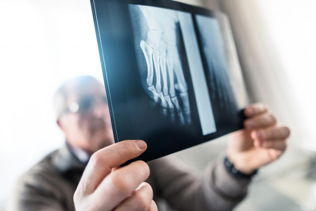 A doctor may request an x-ray to help diagnose the cause of pain at the big toe joint.