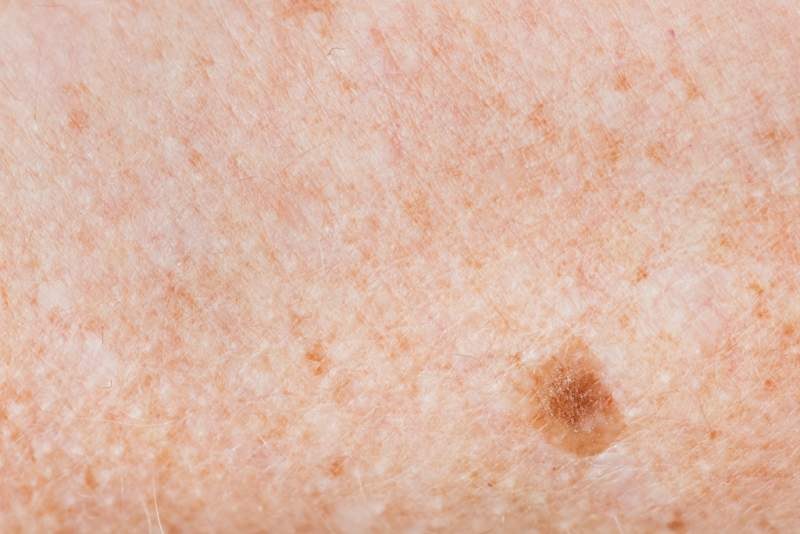 closeup-of-freckled-skin